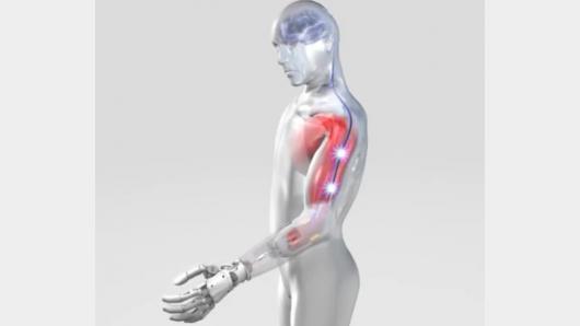 Šiuolaikiniai protezai: valdomi mintimis ir siunčiantys informaciją į smegenis
